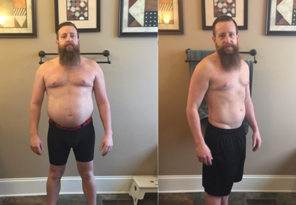 David - before and after with MetPro